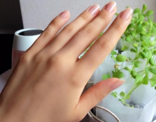 指関節黒ずみ