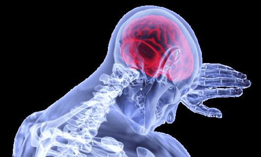 血管年齢高い脳病気